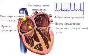 Отдышка и мерц. Аритмия