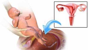 Нестабильные месячные после родов