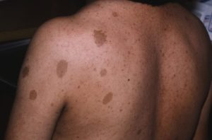 Нейрофиброматоз у мальчика 3,5г