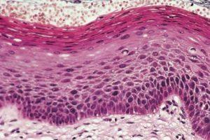 Паракератоз при беременности