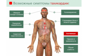 Головокружение и тахикардия