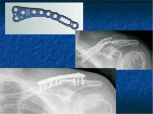 Перелом ключицы со смещением, нужна ли операция