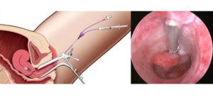 Остатки плацентарного полипа или рубцовые изменения, возможность забеременеть