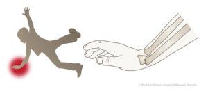 Падение на прямую руку