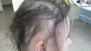 Очень сильное выпадение волос