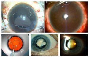 Гноится глаз после удаления катаракты