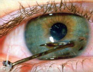 Глаз порезала