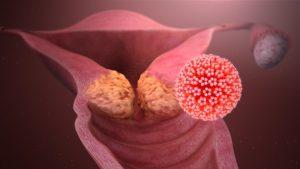 Хроническая болезнь матки, вирус паппиломы высокого онкогенного риска, эндометриоз
