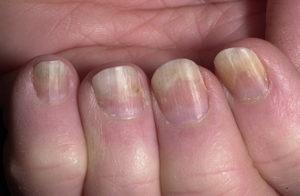 Ноготь отходит от пальца после гель лака