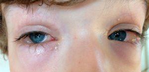 Гнояся глазки после сладкого.
