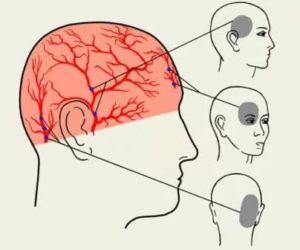 Болит левая половина головы