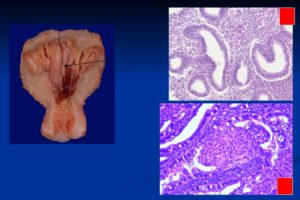 Норколут, гиперплазия эндометрия, полип эндометрия