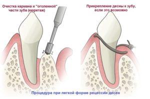 Отходят десны от зубов
