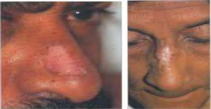 Некроз кожного лоскута скальпированной раны голени при системной красной волчанке