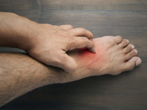 Нога свербит