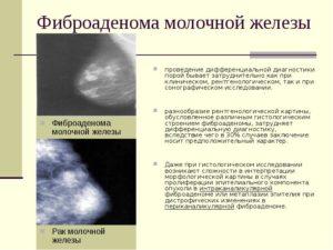 Фиброаденома и гормоны