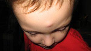 Не проходит шишка на голове после удара