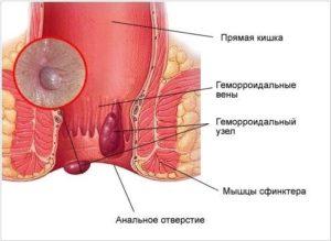 Фиолетовый узел около анального сфинктера