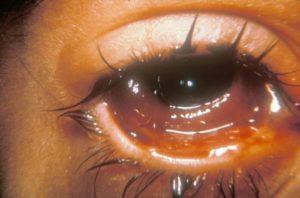 Гнойные выделения из правого глаза, течет слеза