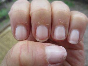 Облазит кожа вокруг ногтя. Что это грибок?