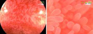 Фолликулярная гиперплазия слизистой прямой и сигмовидной кишки у ребенка