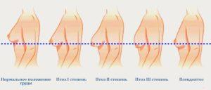 Обвисшая грудь после кормления