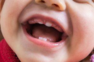 Нет зубов в 7 месяцев