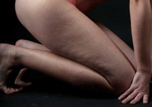 Неровности на ногах