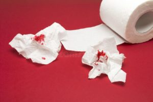 Геморроидальный узел, немного крови на туалетной бумаге