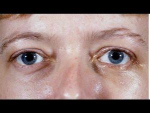 Опух внутренний уголок глаза