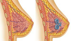Фиброзной-кистозная мастопатия