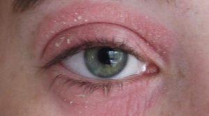 Опухает и чешется глаз