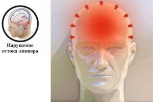 Головные боли после ушиба с отдачой в глаза