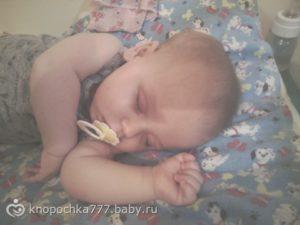 Перелом черепа у ребенка 6 ти месяцев