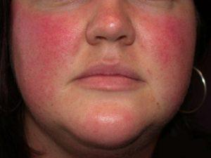 Горит лицо, щеки красные и очень болят