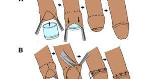 Отек и гематома после обрезания
