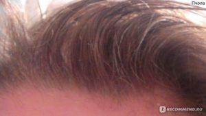 От кишечника ли выпадают волосы?