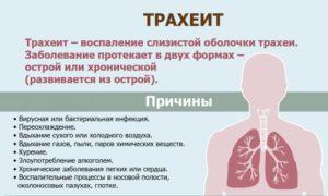 Хрипы в легких, першение в горле и сухой кашель