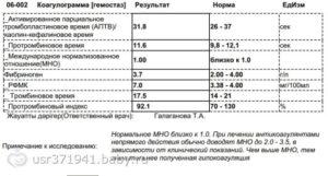 Гиперфибриногенемия, повышен РФМК
