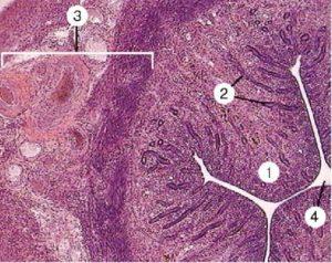 Гистология после внематочной беременности