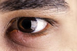 Отёк глаза, ячмень