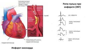 Низкий пульс и давление после инфаркта