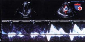 Фиброаденома, цветовые сигналы при исследовании цветным допплером
