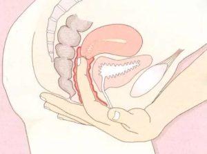Неприятные ощущения во влагалище при беременности