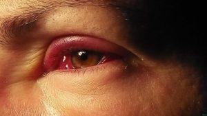Опухли глаза почти не открываются