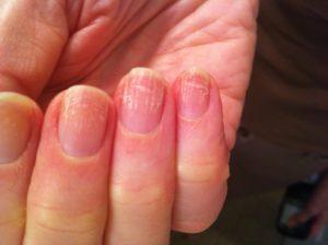 Грибок ногтей или авитаминоз