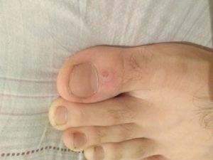 Непонятное образование на большом пальце ноги