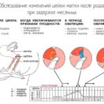 Отсутствие менструации 9 дней при отрицательных тестах