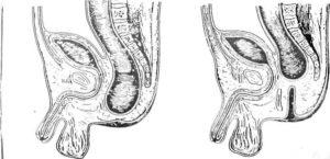 Отсутствие анального прохода у новорожденного