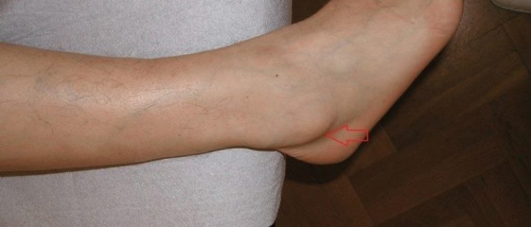 Не понятная шишка на ноге